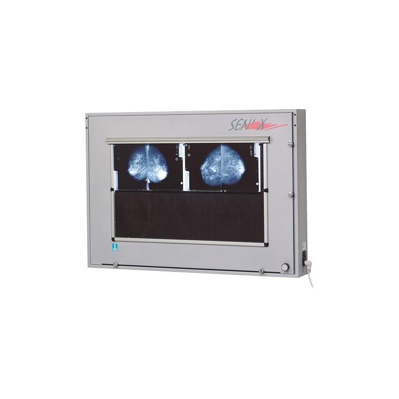 Négatoscope de mammographie Sen'X 8